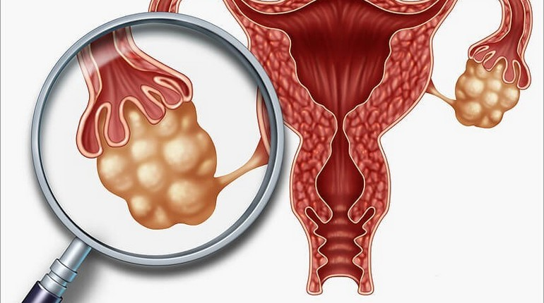 поликистоз ,лечение бесплодия, органы таза