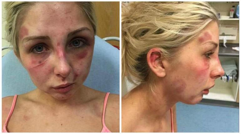 девушка с избитым лицом, изувеченное лицо девушки