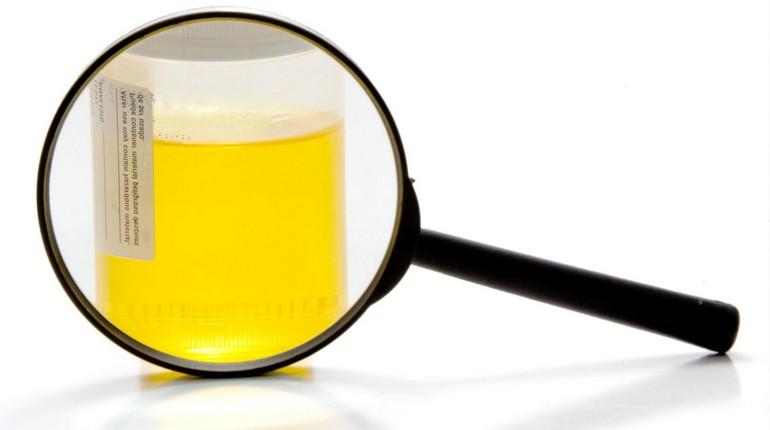 лупа на фоне стакана с жидкостью, анализ мочи