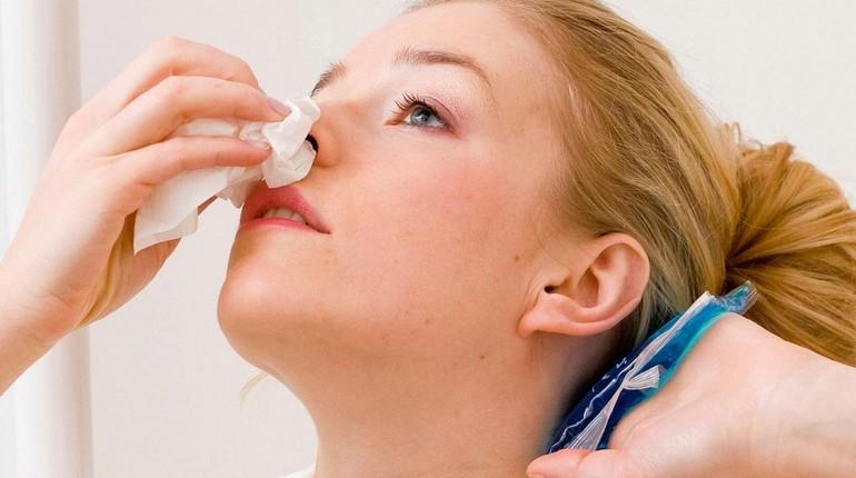 как остановить носовое кровотечение, у девушки кровь из носа