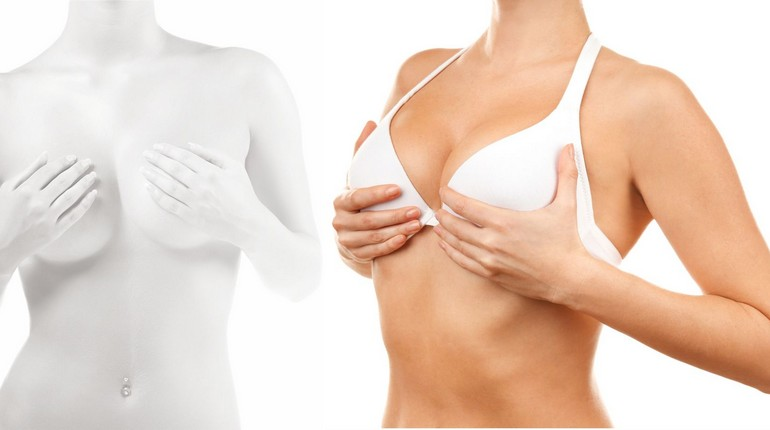 маммопластика, девушка на приеме у врача, увеличение груди