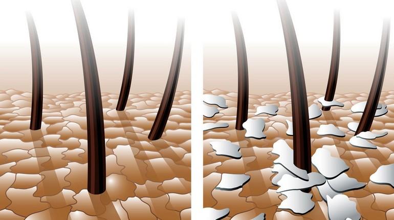 увеличенное изображение покрова головы, волосы под микроскопом