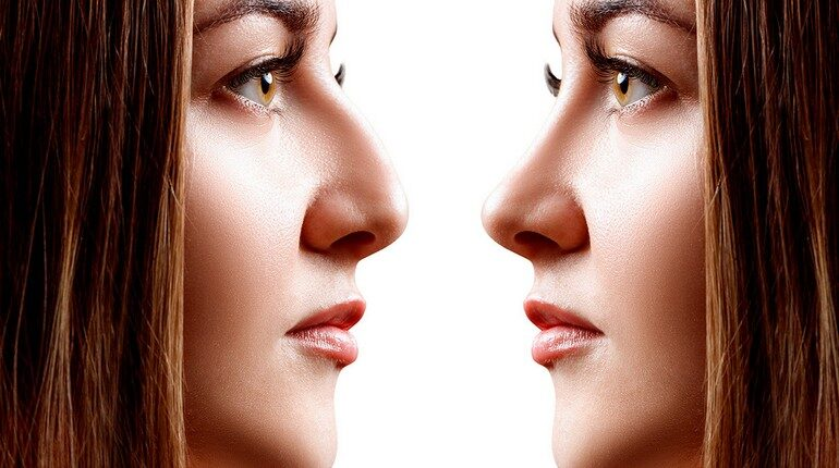две девушки смотрят друг на друга, девушки с разными носами