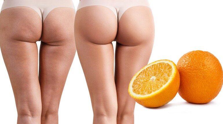 женские ягодицы с целлюлитом и без, эффект апельсиновой корки
